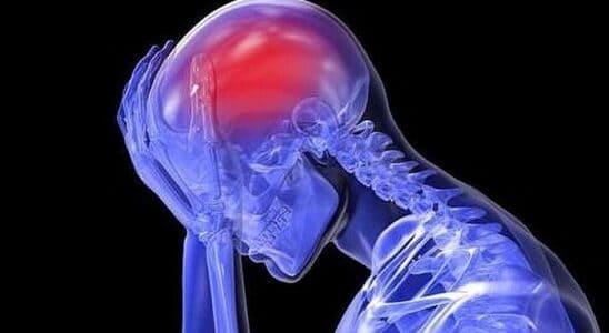 Tętniak naczyń mózgu
