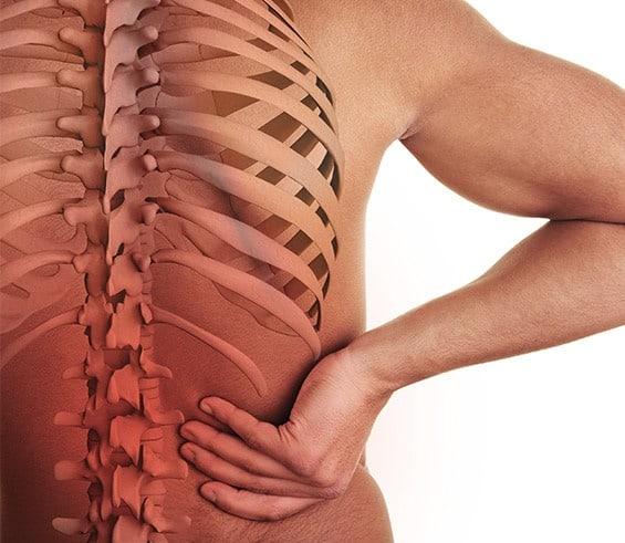 javier arceo columna vertebral