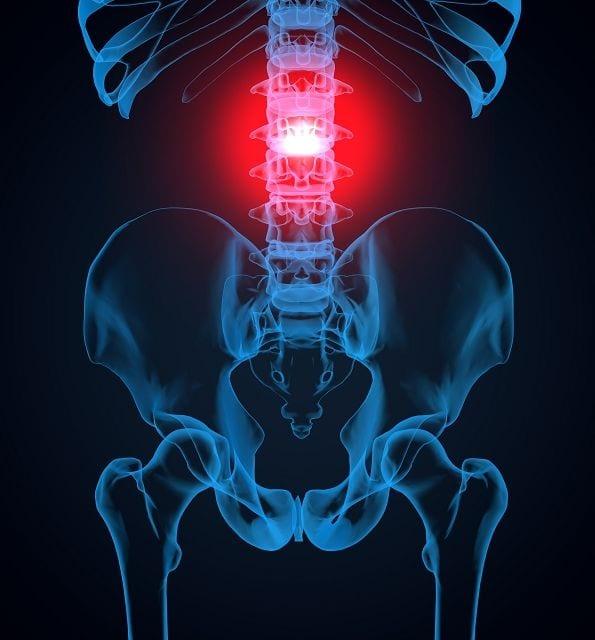 """Für Entzündungen im Bereich der Wirbelsäule gibt es verschiedene Begriffe die die Region des Befalls beschreiben. Spondylitis bedeutet übersetzt """"Wirbelkörperentzündung"""", Osteomyelitis wiederum heißt """"Infektion des Knochenmarks"""", Osteitis ist eine """"Knochenentzündung""""."""