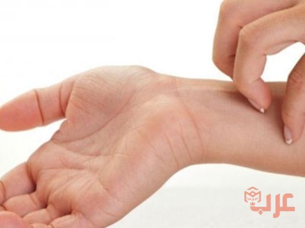 %D8%A7%D9%88%D9%85%D9%81%D9%8A%D9%84 2 - حبوب اومفيل لعلاج الحساسية هلتسبب النعاس