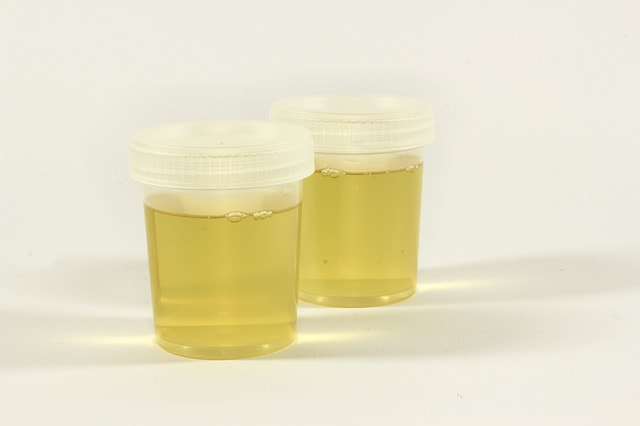 Test urine sample containers