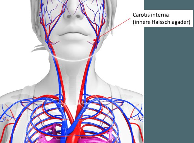 Die carotis interna ist ein Ast der carotis communis (Halsschlagader) und versorgt Teile des Gehirn sowie das Auge. Bei einer Schädigung dieser kann es zu Sehstörungen kommen.