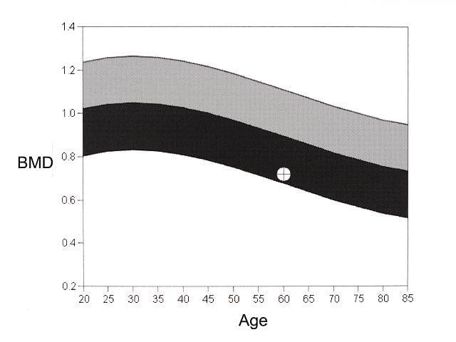 Auf der Linken Hochwertachse sieht man die Knochendichte in g/cm². Auf der unteren Skala ist das Alter abgebildet. Liegt der gemessene Wert im hellgrauen Bereich ist kein Knochenschwund vorhanden, im schwarzen Bereich dagegen schon.