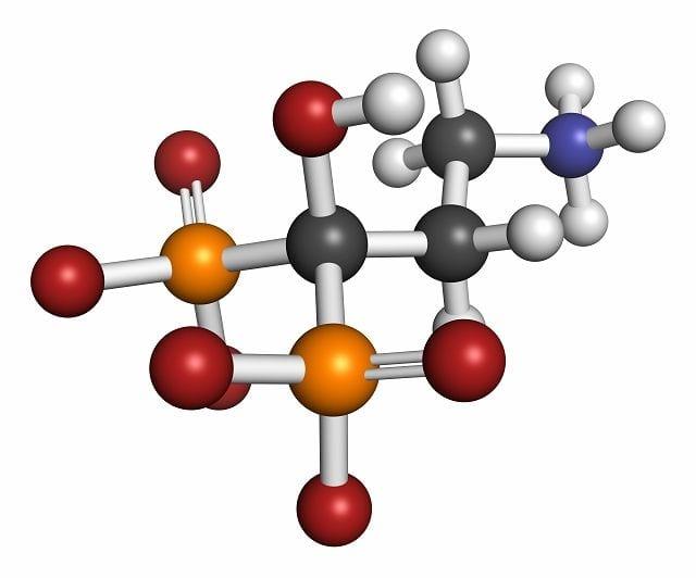 Pamidronat ist ein in Deutschland zugelassenes Medikament der Gruppe der Bisphosphonate zur Behandlung von Morbus Paget