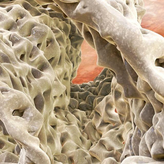 Bei Patienten sind an den betroffenen Knochenbereichen sogenannte Riesenosteoklasten zu finden, die um den Faktor fünf bei der Anzahl der Zellkerne vergrößert sind. Somit findet ein beschleunigter Knochenabbau statt.