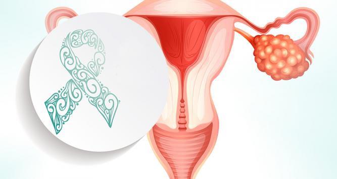 Día Mundial del Cáncer de Ovario: todo lo que debes saber para prevenirlo