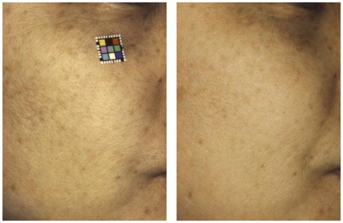 skin_aging_study_images