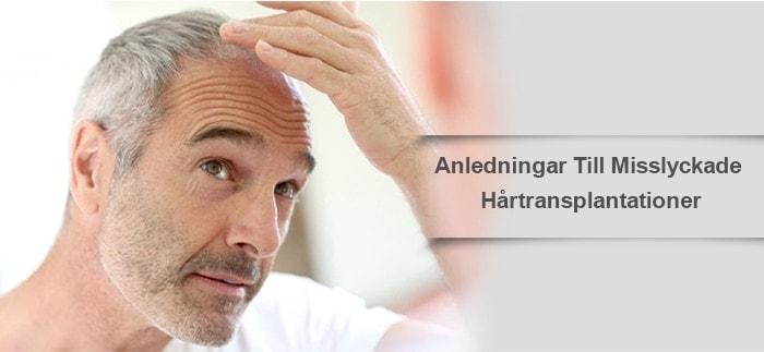 Anledningar Till Misslyckade Hårtransplantationer