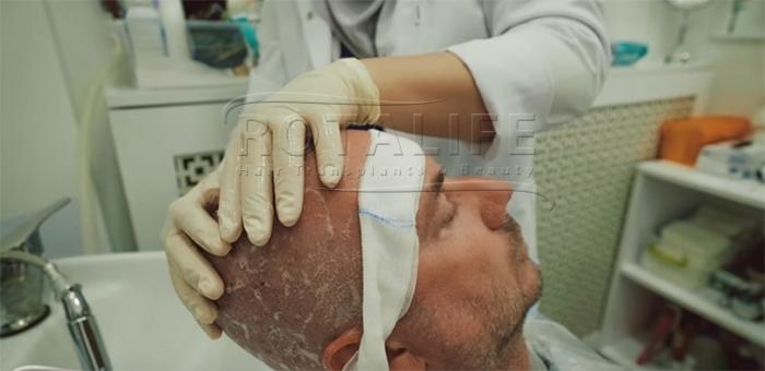 Premier Lavage Après la Greffe de Cheveux