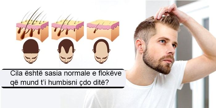 Cila është sasia normale e flokëve që mund t'i humbisni çdo ditë?