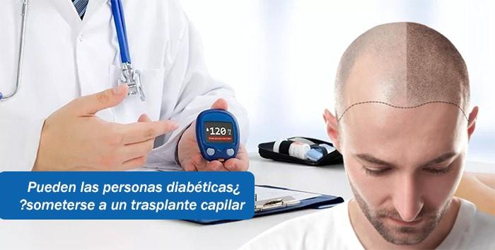 ¿Pueden las personas diabéticas someterse a un trasplante capilar?