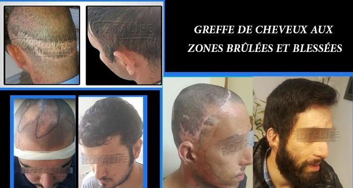 Greffe de Cheveux aux Zones Brûlées et Blessées