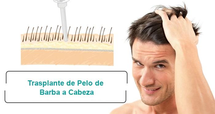 Trasplante de Pelo de Barba a Cabeza