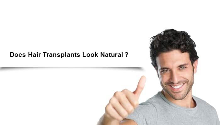 Does Hair Transplants Look Natural?