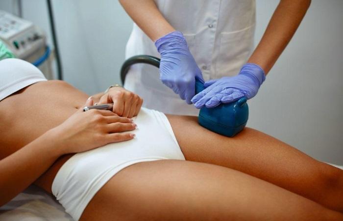 Как убрать растяжки на коже: микродермабразия