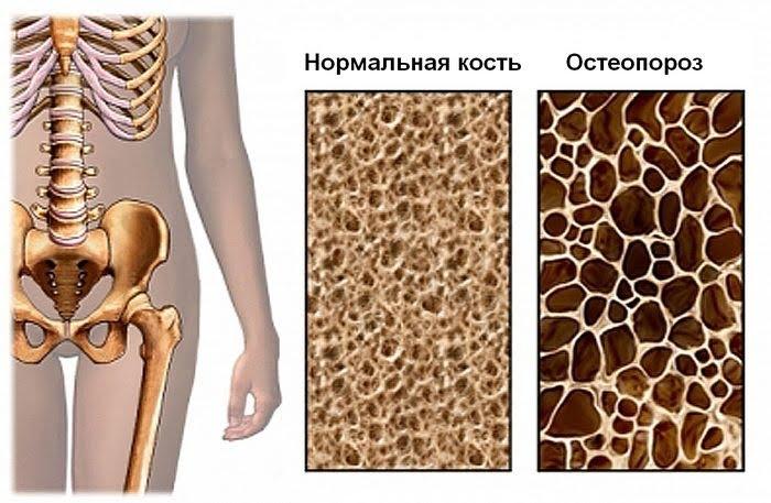 Остеопороз. Введение