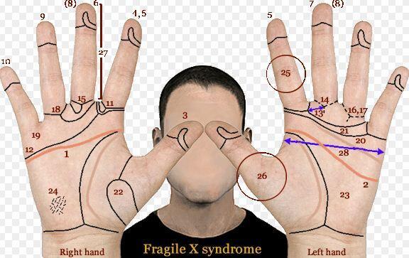 frajil x sendromu tedavisi