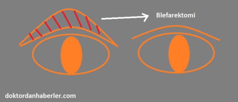 tıpta blefarektomi nedir