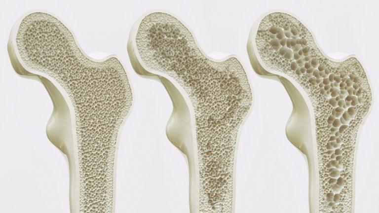 csontritkulás - magnézium