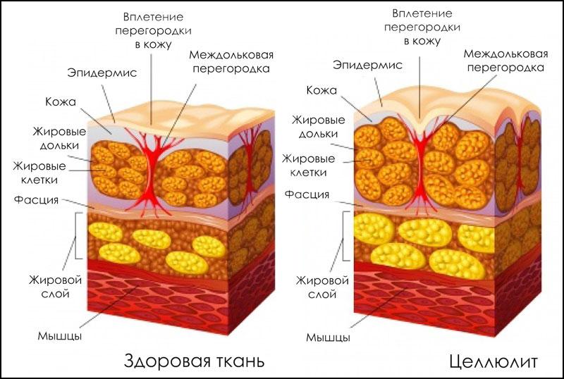 Здоровая кожа и кожа с целлюлитом