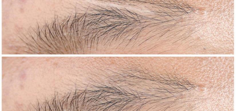 medizinische-Schönheitskorrektur-Narbenbehandlung