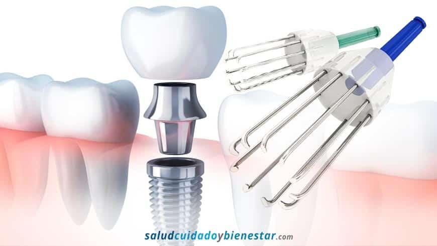 Limpieza de implantes dentales - Tratamiento de la Periimplantitis