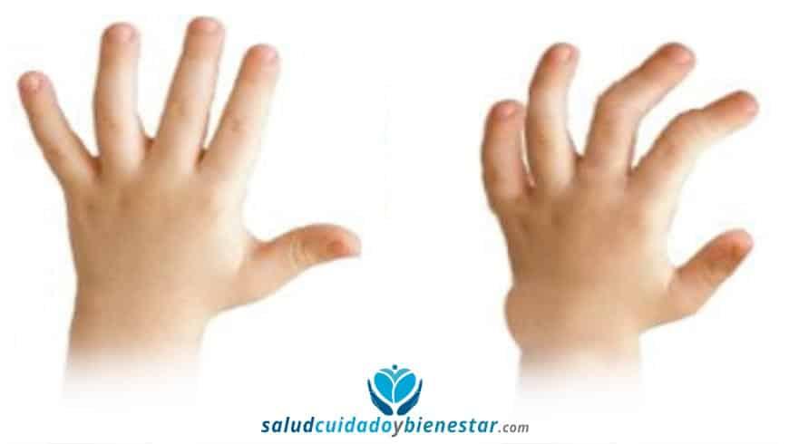 Anomalías y malformaciones de la mano en niños – La Clinodactilia