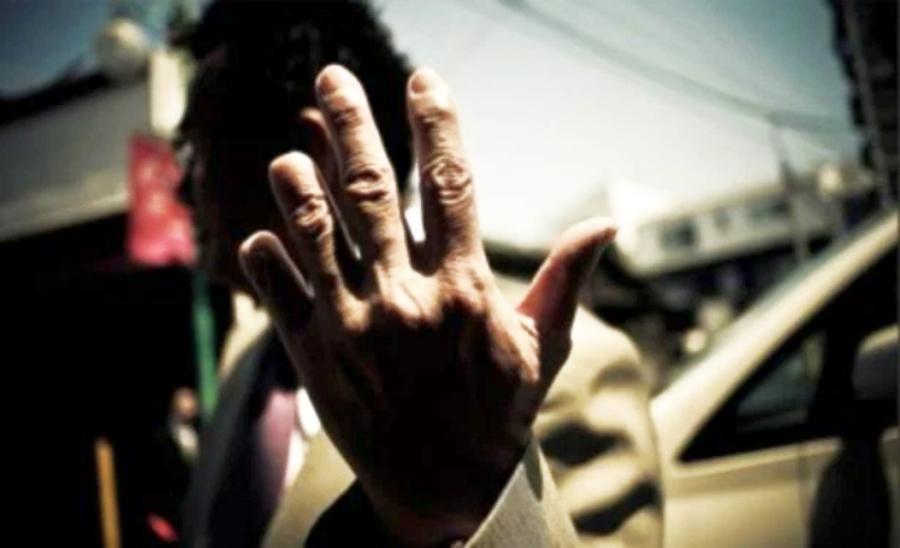 Dedos cortados de un Yakyza para lavar sus pecados