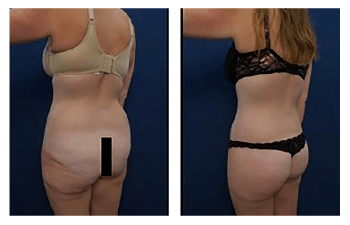 Buttock Surgery Los Angeles
