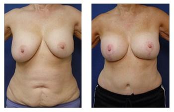 breast augmentation revision patient 1 front view