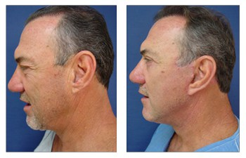 lower eyelid surgery Newport Beach