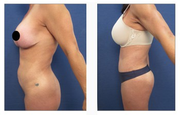 How do I avoid the operated look following abdominal liposuction?