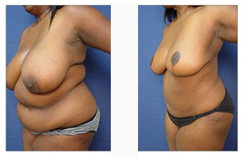 High definition liposuction Beverly Hills