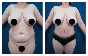 Tummy Tuck And Lipo