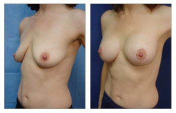 When Is A Breast Lift Covered By Insurance? oblique view