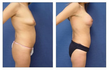 Breast Lift With Implant Augmentation To Increase Breast Mound Size