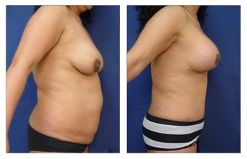 Mommy Makeover With Tummy Tuck And Breast Lift With Implant Augmentation
