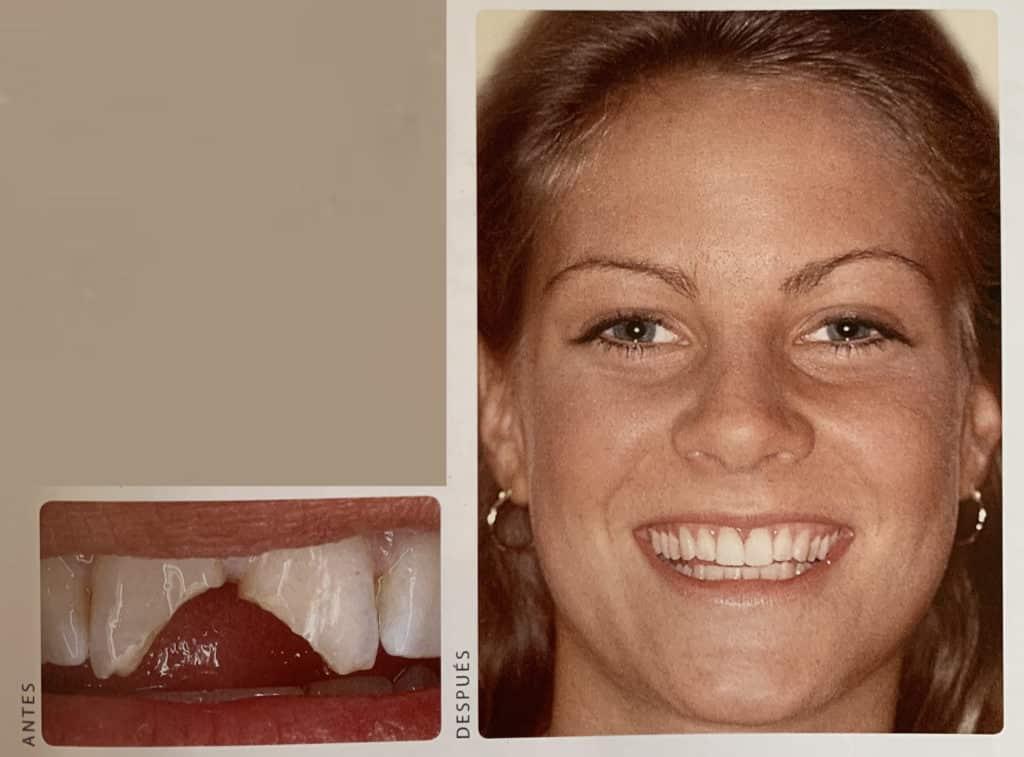 Adhesión dental para diente fracturado
