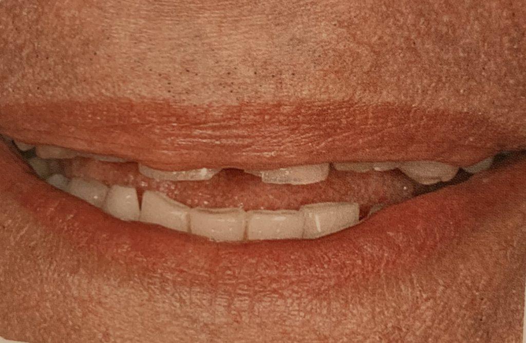 Línea de labios baja | Odontología estética