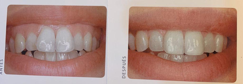 contorneado de dientes protusión