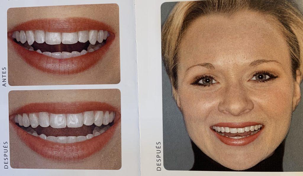 contorneado dientes maloclusión