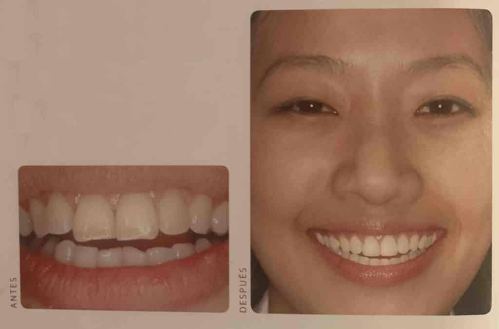 contorneado dientes torcidos