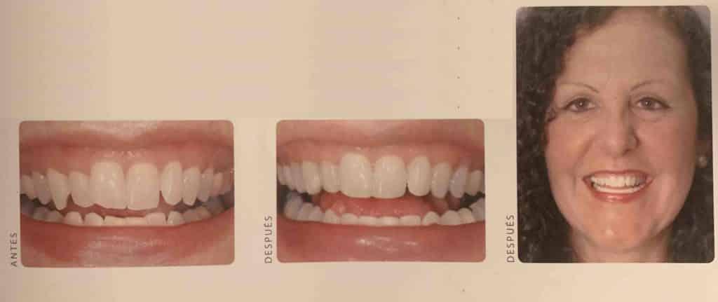 dientes torcidos niños