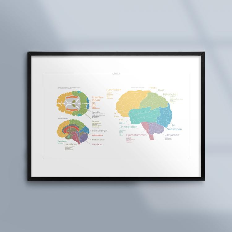 En tavla om hjärnan