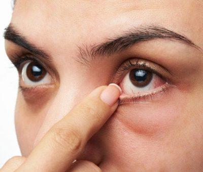 Blépharospasme (tic de paupière) : Causes et traitements
