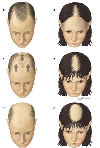 الصلع الوراثي في الرجل والمرأة