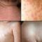 Герпес 6 типа у детей: какие симптомы, чем лечить вирус?