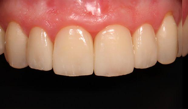 Aesthetic treatment with veneers result