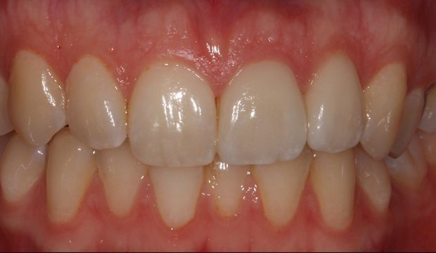 Aesthetic treatment with veneers before treatment - Dental Clinic