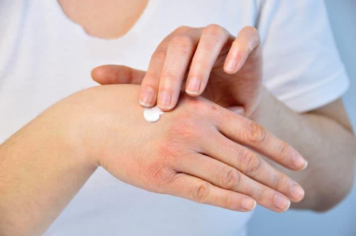 Hilfe gegen Psoriasis (Schuppenflechte) mit Cannabis